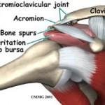 Shoulder Impingement 2